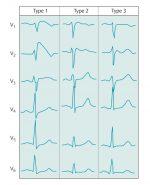 18 Cardiac Arrhythmias