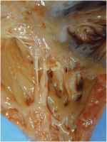 Chapter 8 – Inflammation of the Myocardium, Endocardium and Aorta
