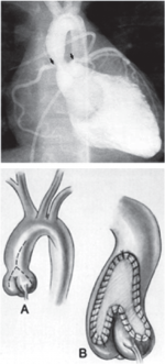 Chapter 14 – Aortic Valve Disease and Left Outflow Tract Obstruction