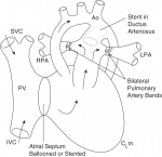 Chapter 20 – Hypoplastic Left Heart Syndrome