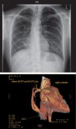 Chapter 8 – Anomalous Pulmonary Venous Connection and Cor Triatriatum