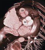 15 Pulmonary Valve