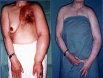 Microsurgical Procedures: Lymphovenous Anastomosis Techniques
