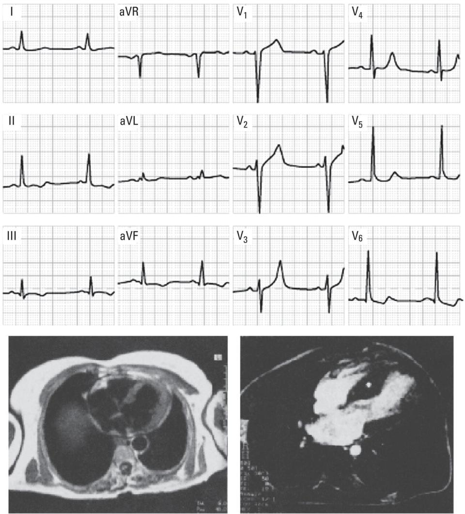 Schematic illustration of Top: ECG with left ventricular enlargement pattern not specific of any heart disease.