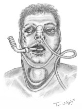fracture craniofaciale Lefort