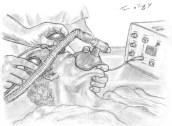 electroconvulsivo therapie ECT