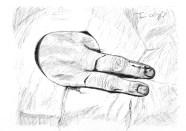 plaie dorsale doigt