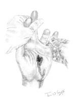 plaie par balle main
