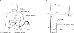 Pulse transit time: an appraisal of potential clinical applications | Thorax