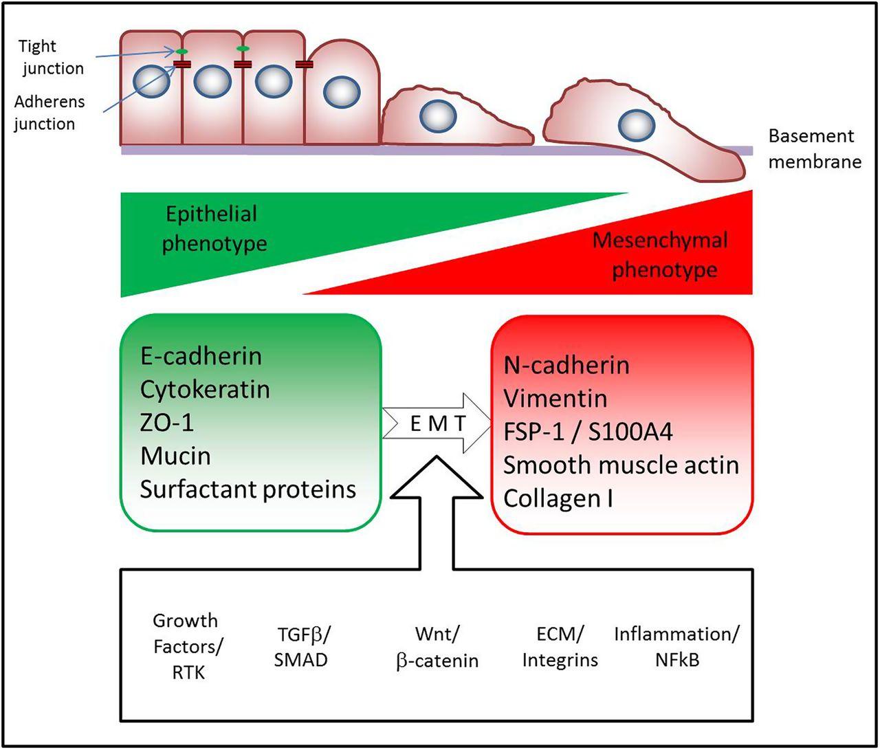 Insulin Growth Factor 1