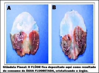GLANDULA-PINEAL
