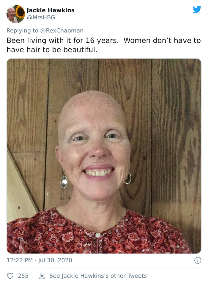 Due To Alopecia Boyfriend Shaves Girlfriend's Head Only To Shave His Own Immediately After