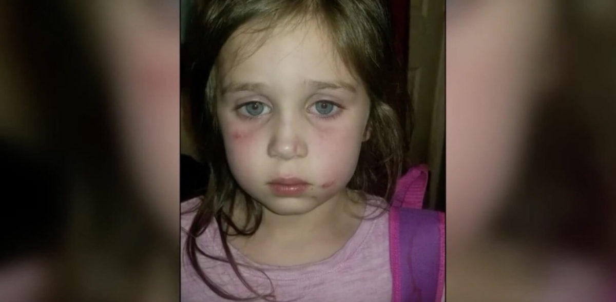 """""""bus ride was complete terror and torture"""": 5-year-old girl attacked by 12-year-old bully on school bus"""