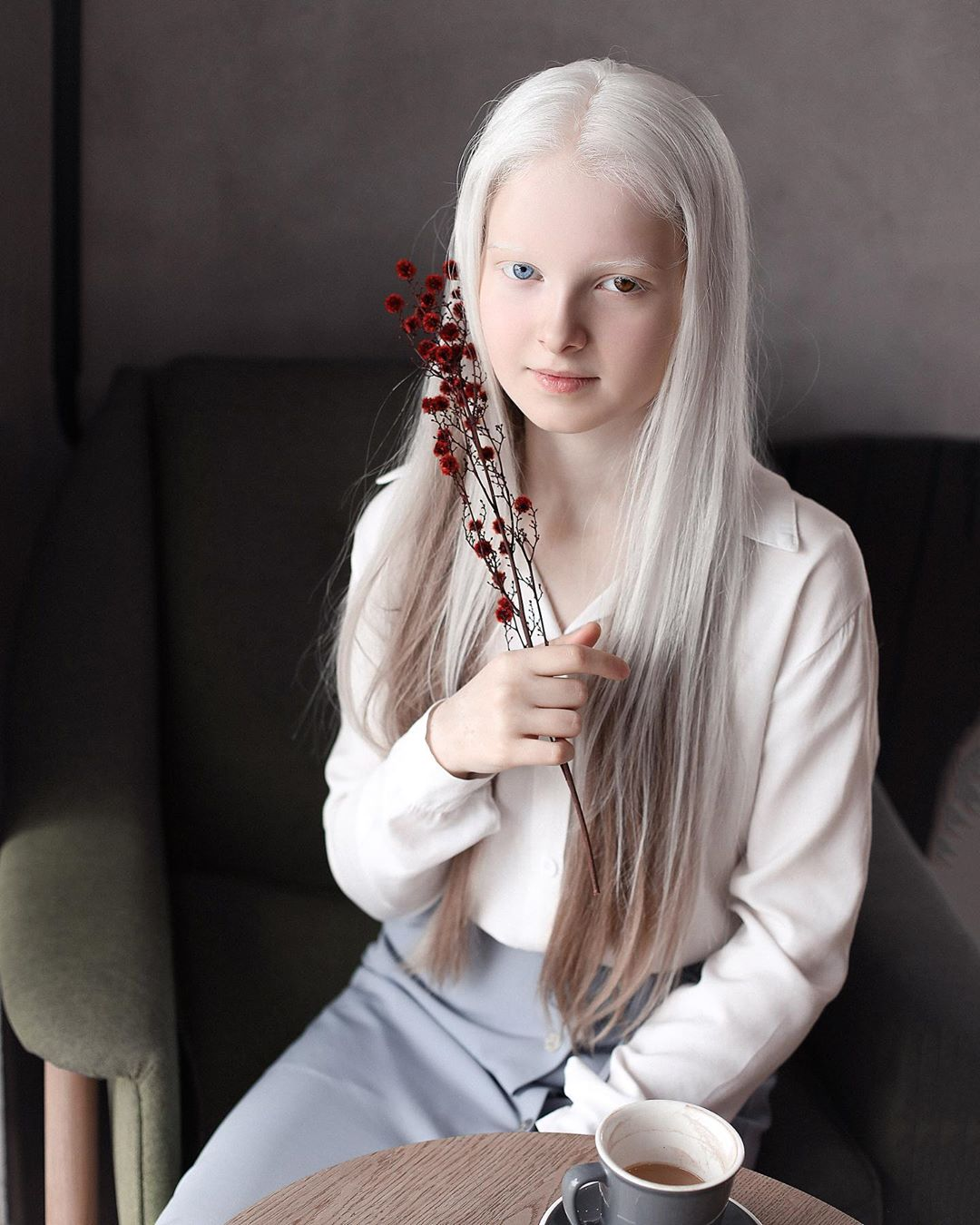 amina ependieva – a girl who inherited two genetic mutations and exceptional beauty