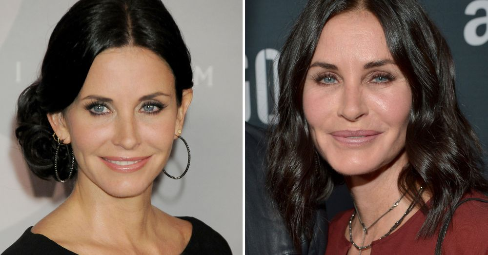 10+ Pics Of Celebs Before And After They Had Plastic Surgery