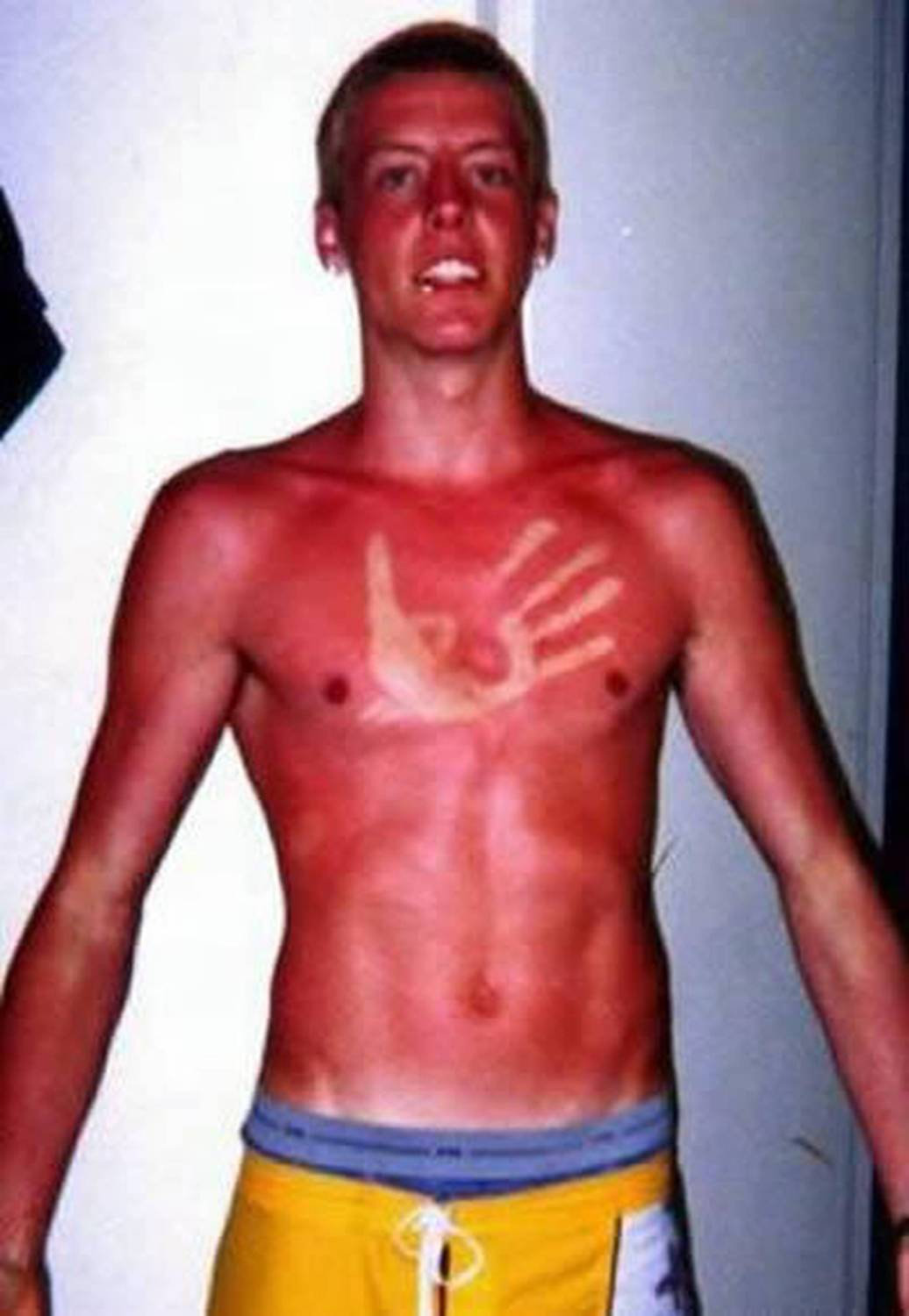 Some Of The Worst Sunburns On The Internet