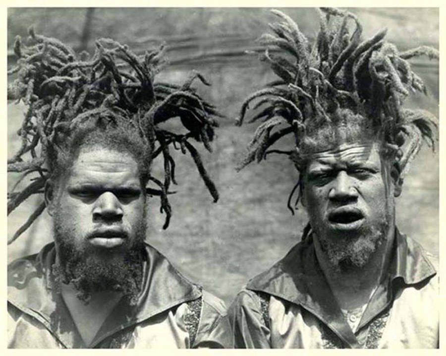 George And Willie Muse: Black Albino Brothers Who Were Kidnapped By The Circus And Displayed As Freaks