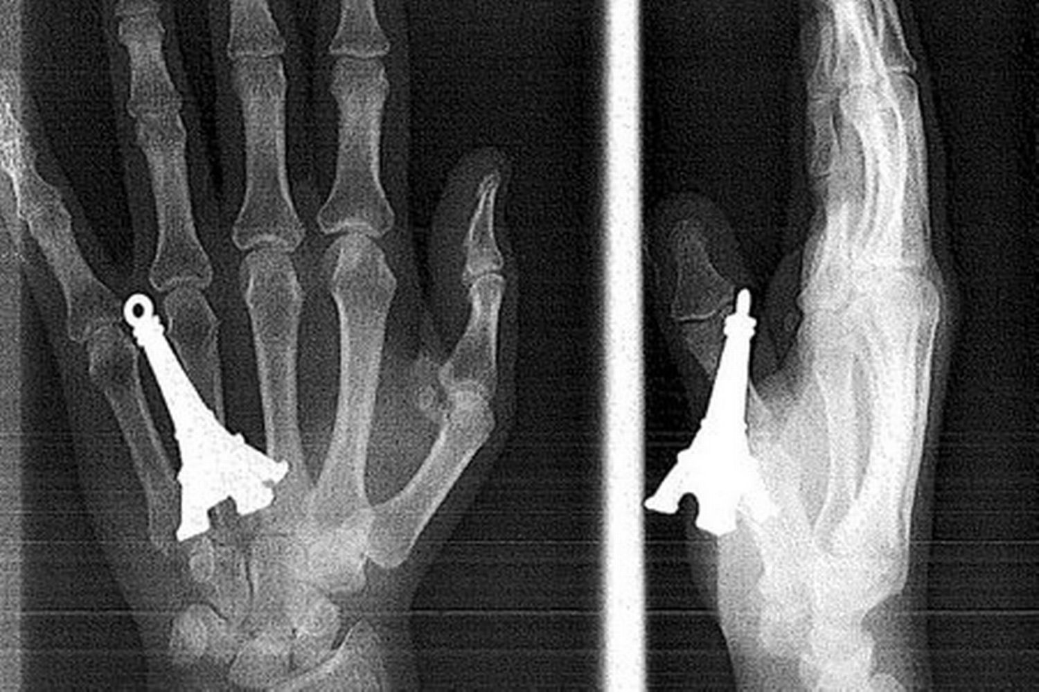 15 Strange And Funny X-ray Images That Will Make You Squirm