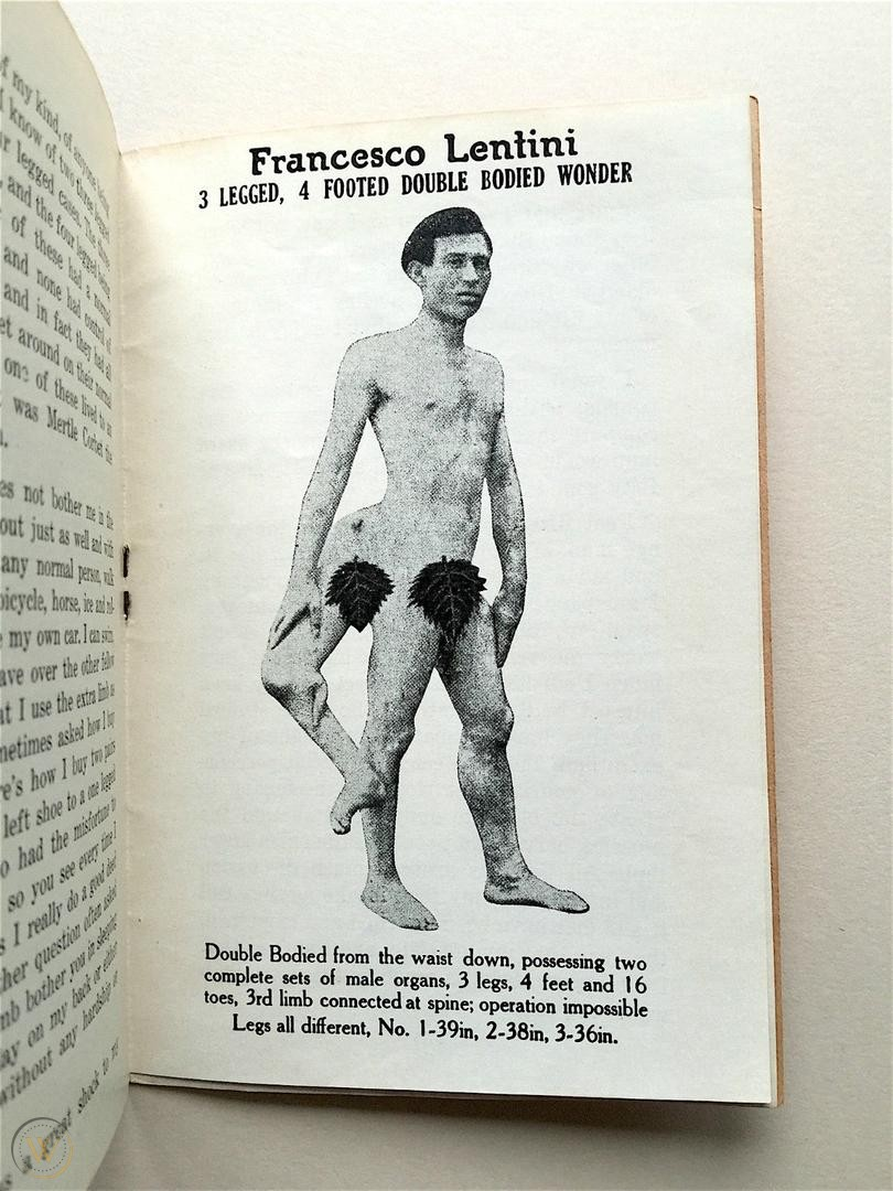 Who Was Frank Lentini, The Three-legged Football Player With 2 Penises And 4 Feet?