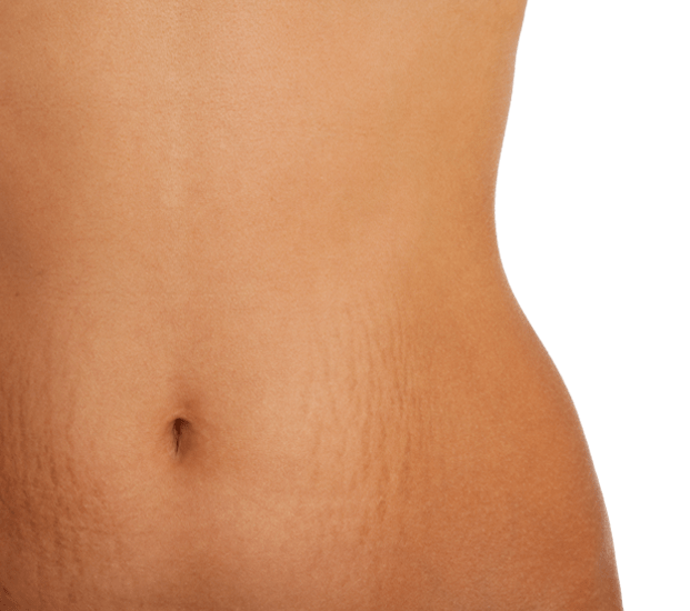 Reducing StretchMarks Naturally Threads