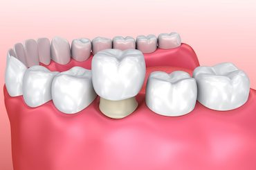 Dental crowns & Bridges murfreesboro tn