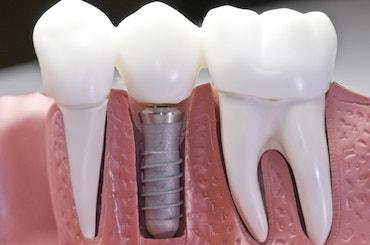 implant restoration murfreesboro tn