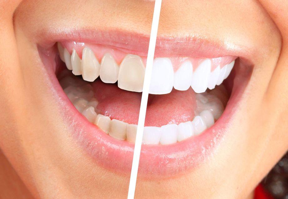 Teeth Whitening: Charleston, SC edition