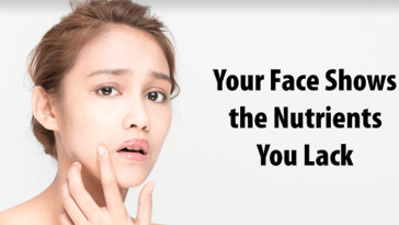 These Signs On Your Face Tells About Your Nutrient Deficiencies.