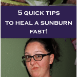 How to Heal a Sunburn Quickly