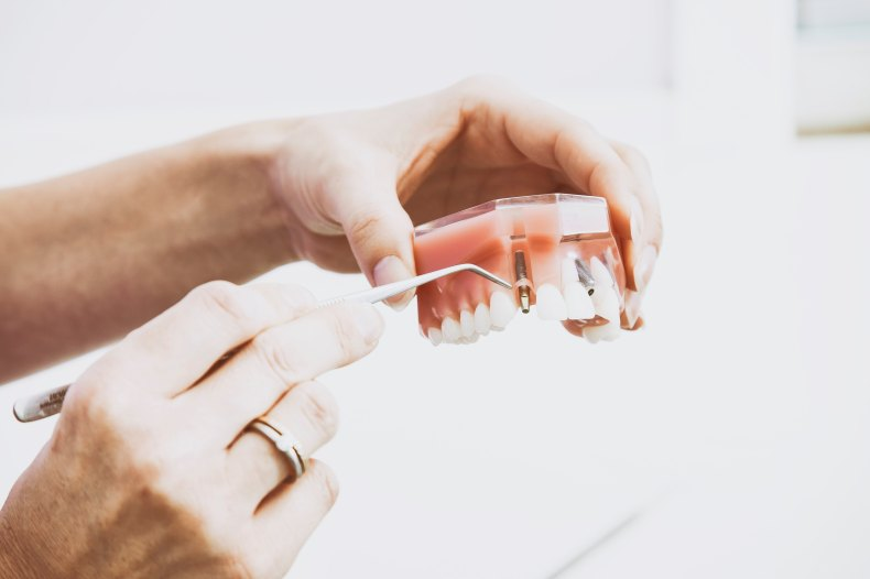 Dental Care is important to your health, but can be costly. Here are some ways to get free dental care.