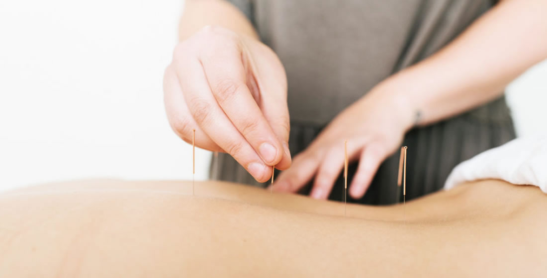 Acupuncture Almonte