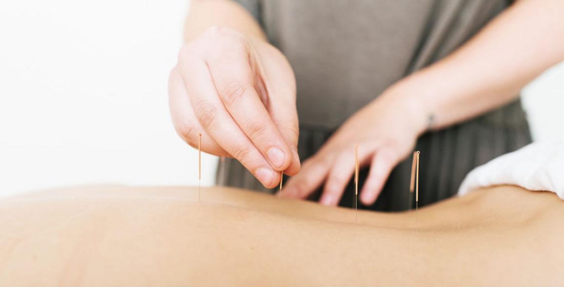 Acupuncture Almonte