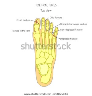 Pinky Toe Stock Images, RoyaltyFree Images & Vectors