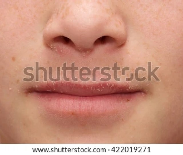 Allergic Boy A Teenage Boy With Severe Allergies Has Eczema Nasal Congestion And Dry