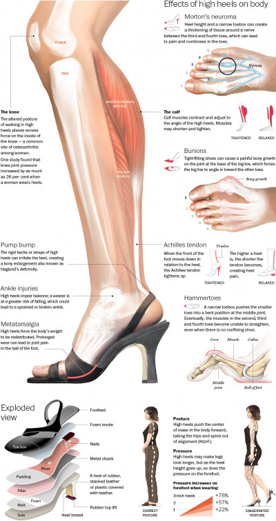 danger of high heels infographic, unhealthy high heels