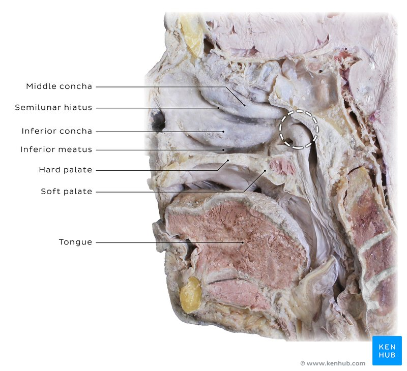 Schwannoma Of The Nasal Cavity Clinical Case Diagnosis