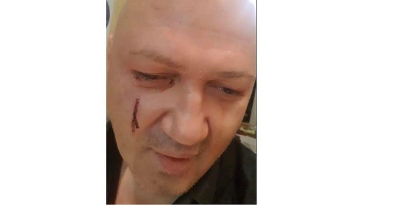 """У львівському """"Гранд готелі"""" побили бізнесмена за вигук """"Прівєт, Порох!"""" до Порошенка. Микола Лагодич стверджує, що причиною нападу став вигук «Прівєт, Порох!» у сторону екс-президента"""