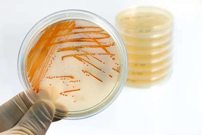 Cell Plate Phone Agar Bacteria