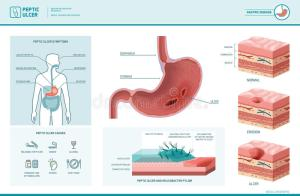 Peptic Ulcer And Helicobacter Pylori Infographic Stock