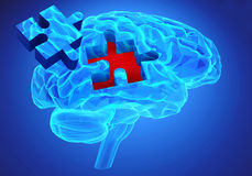 Dementia disease and a loss of brain function and memories Royalty Free Stock Image