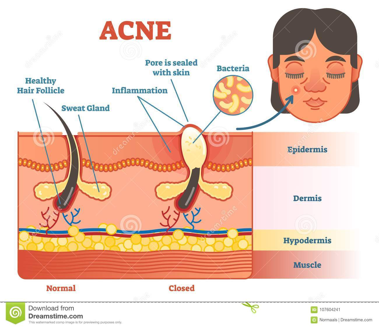 Acne Diagram Illustration With Hair Pimple Skin Layers