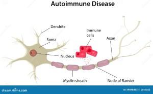 Autoimmune Disease Diagram stock vector Illustration of