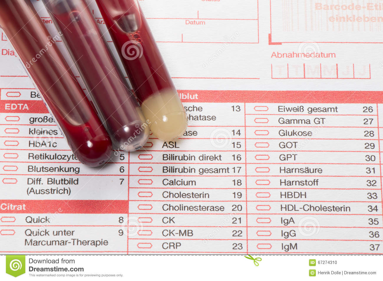 Blood Test Blood Samples On A Laboratory Form Stock Photography