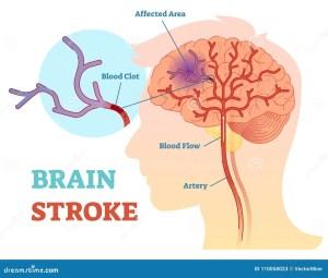 Brain Stroke Anatomical Vector Illustration Diagram