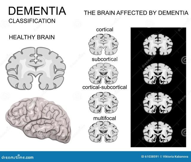 Dementia Alzheimer S Disease