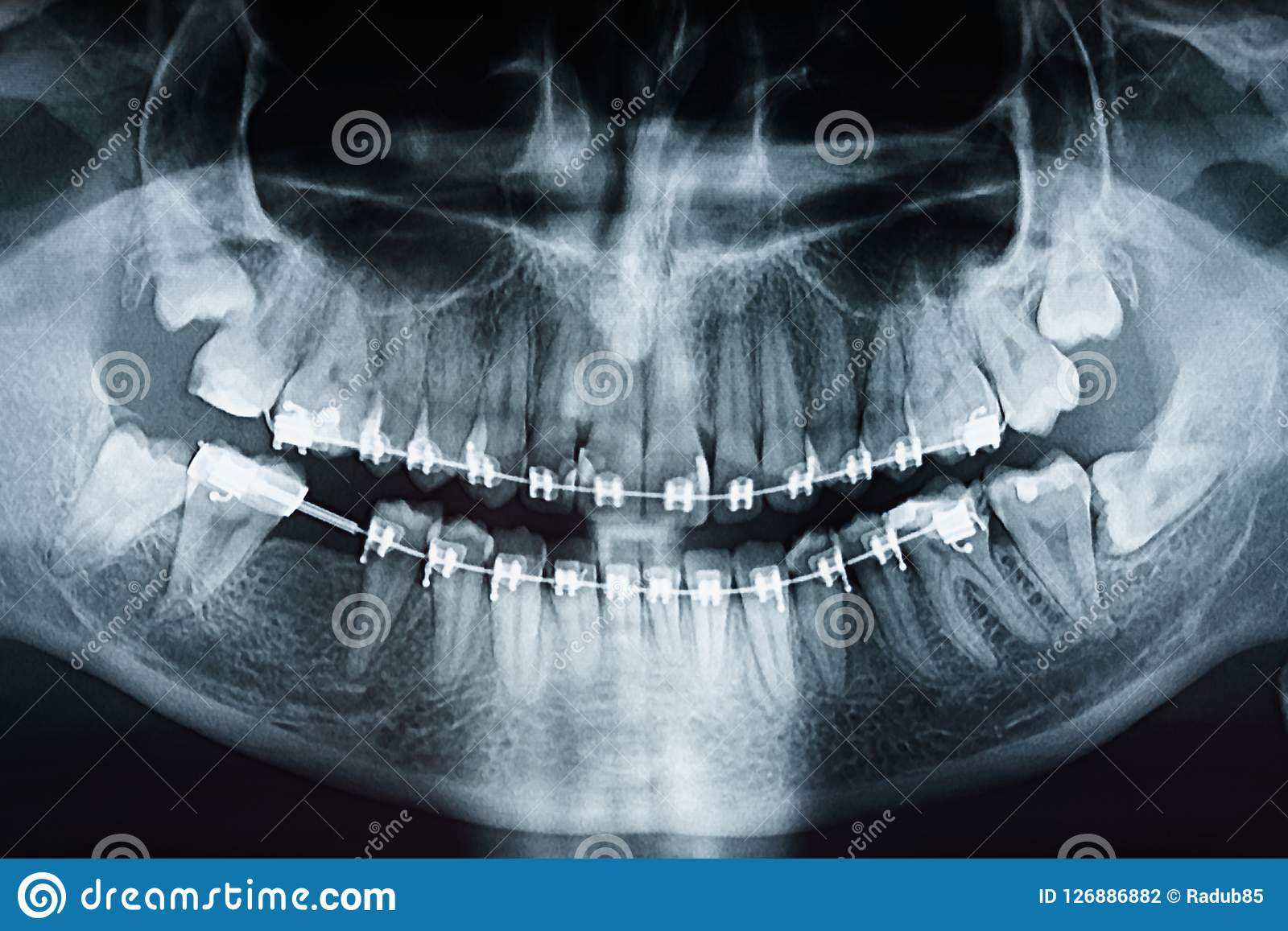 Dental X Ray Photo Of Human Skull And Teeth With Braces