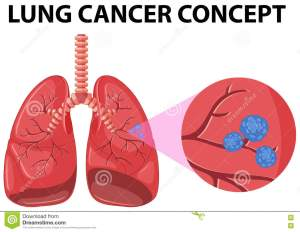 Diagram Of Lung Cancer Concept Stock Vector  Illustration