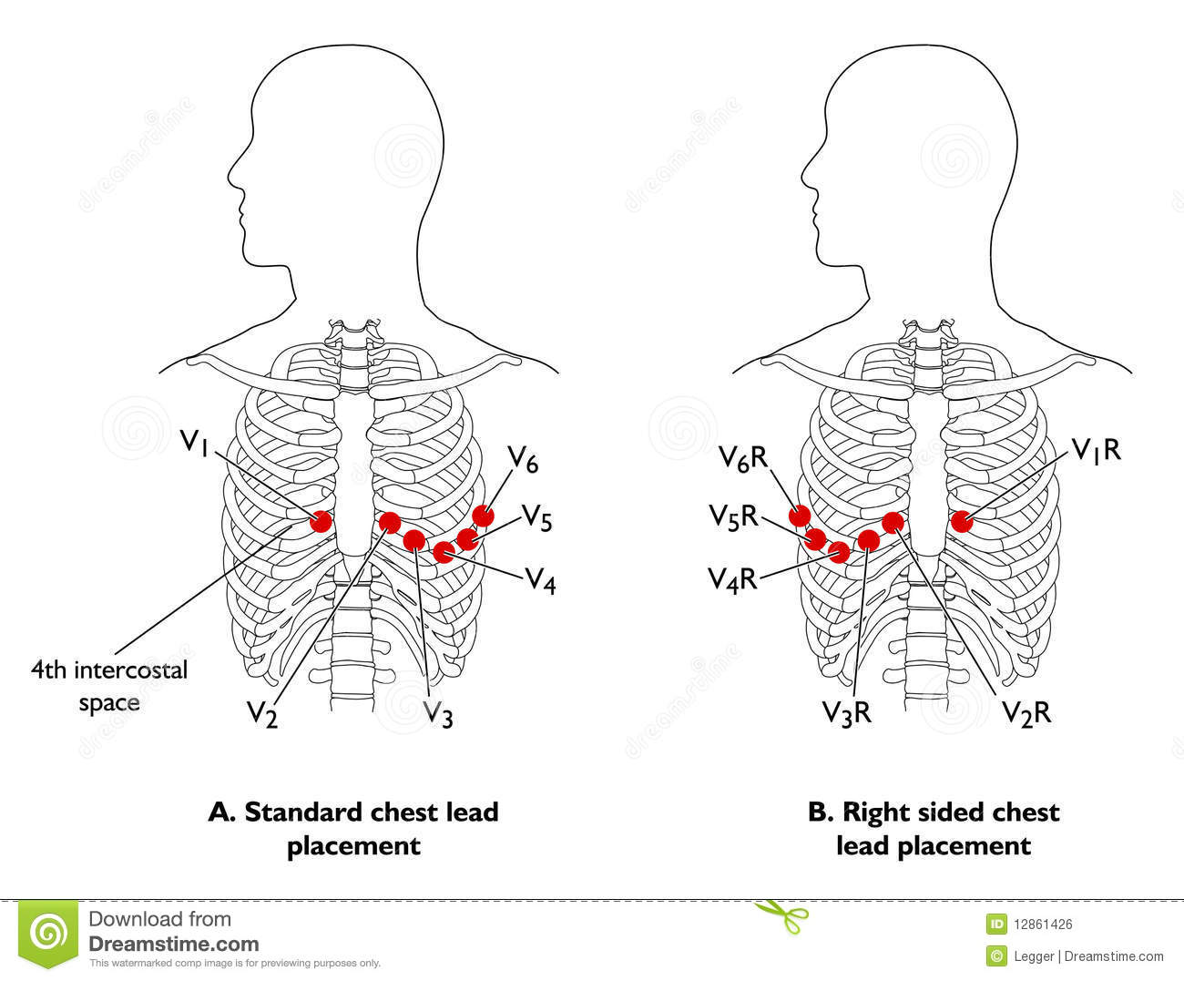 Ecg Chest Leads Royalty Free Stock Image