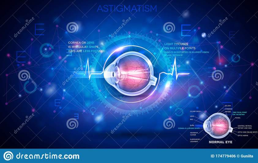 Eye with Astigmatism stock vector. Illustration of ...