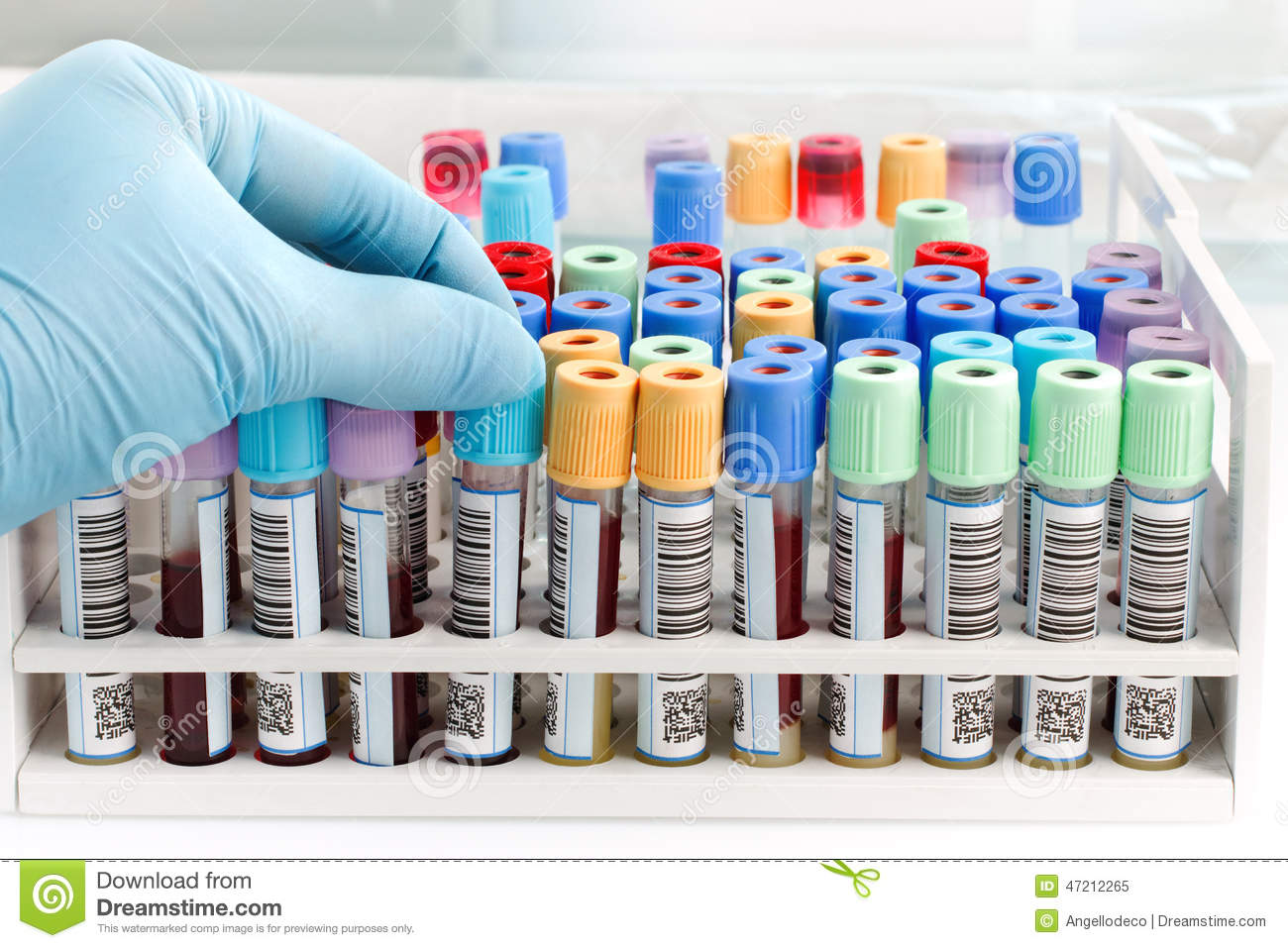Hand Doctor Holding A Blood Tube Test With Bar Code Forysis Stock Photo